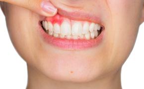 Jakie są objawy parodontozy? - art. sposn.