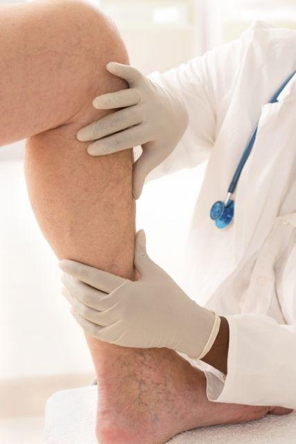 Żylaki kończyn dolnych - leczenie operacyjne - Aktualności